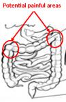 image of colon
